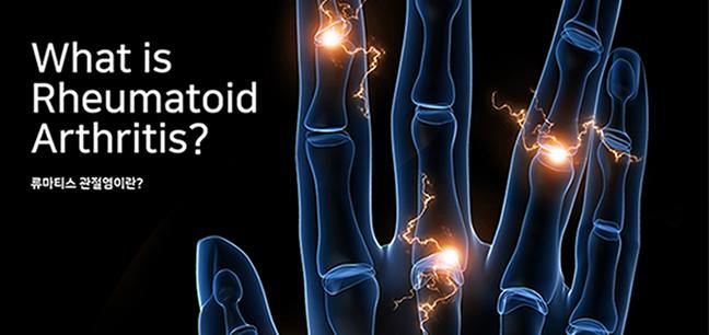 what is pheumatoid arthritis? 류마티스 관절렴이란?
